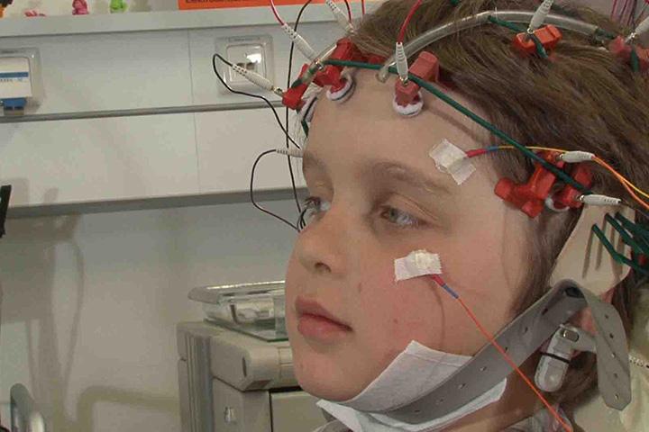 Epilepsiechirurgie bei Kindern und Jugendlichen