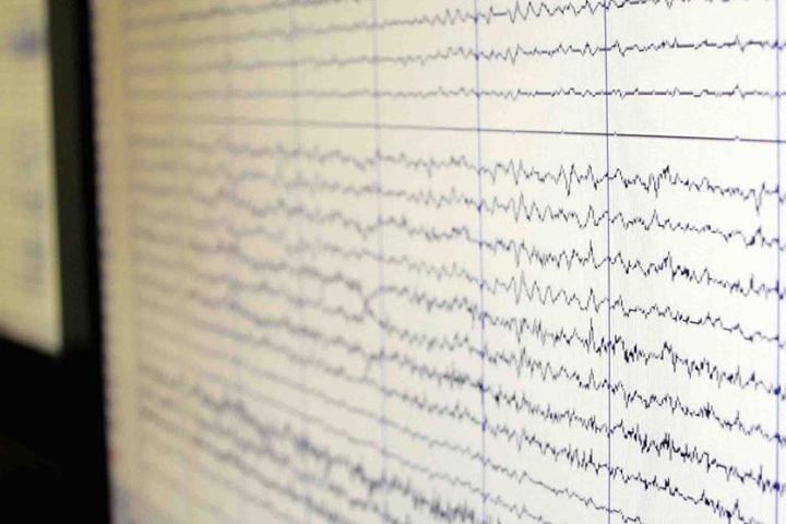 Diagnostik der Epilepsien