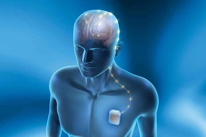Neurostimulation in der Epilepsiebehandlung